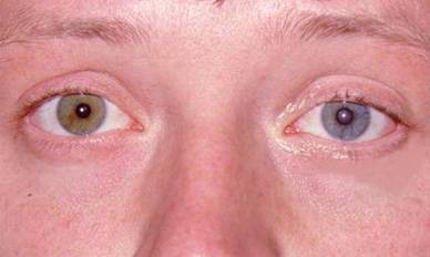 Neurologic conditions associated with Ptosis
