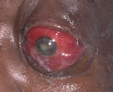 Orbital cellulitis